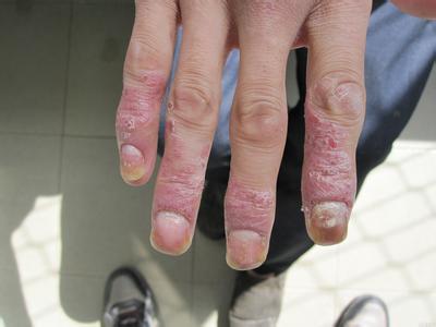 「牛皮癬」搔癢抓不停?「天然6招」鎮靜又抗炎,自救「紅斑、脫屑」必須學!