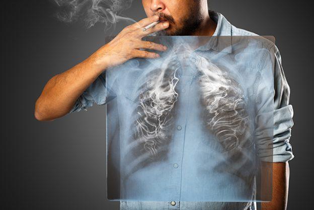 男人患癌80%都死於這5種癌!