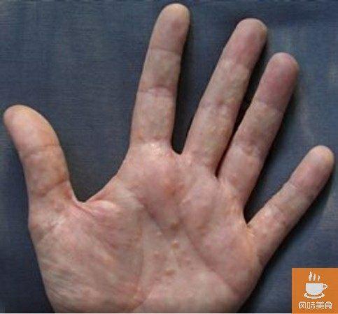 速轉!手指和手掌上長了這樣的皰疹,一定要當心了!速去醫院檢查!分享給身邊的人看看吧!