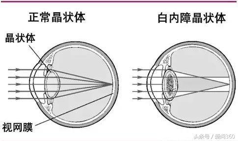 它是眼睛保護神,對近視、老花、白內障特有效