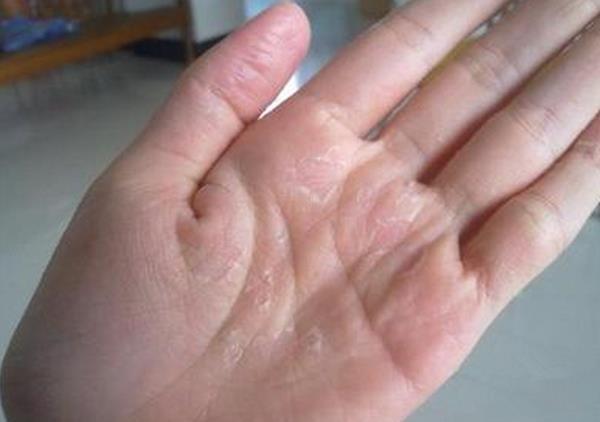 手上起了癢癢的「透明小水泡」,都是平常不注意這個,可惜很多人不知道!