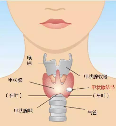 甲狀腺結節別再怕 中醫教你護身法