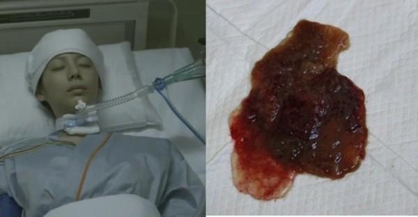 16歲男孩突然肚子痛,大便裡還有血! 醫院檢查竟然得了「癌症」...只因為他平時愛吃這種東西!