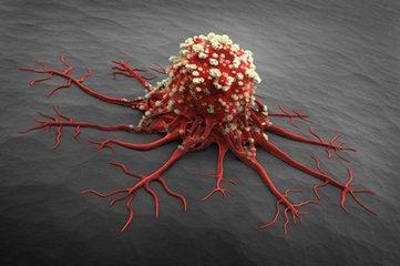 吃出癌症,保健品「功不可沒」。 最好的補品是這六種,近在咫尺
