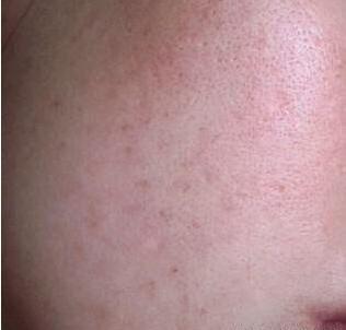 用白醋+「它」一夜祛斑祛痘,皮膚變白嫩且不反彈。