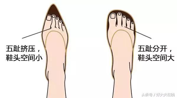 這四種鞋最傷腳!但這樣穿免受傷!