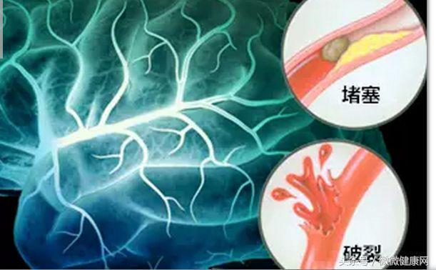 出現5個症狀,說明血栓正在堵塞血管,別猶豫馬上去醫院檢查