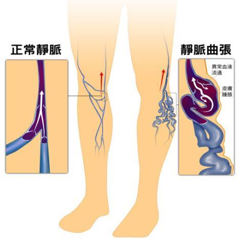 下肢靜脈曲張該怎麼治益活源淺談