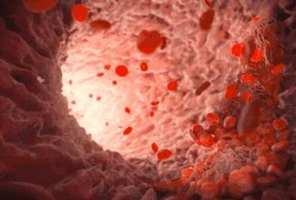 血脂一直正常,血管卻堵了90%?三杯茶幫你掃除血管致命危機