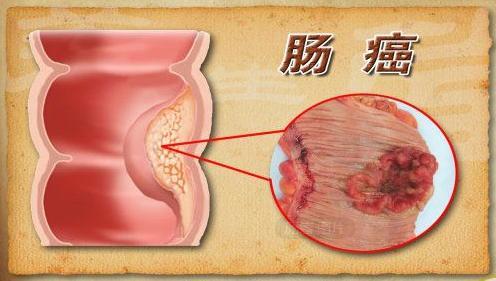 有一個檢查腸癌的好辦法,但是很多人因為害羞而放棄了!趕緊學習