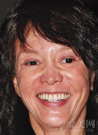 她曾紅透半邊天,歧視黃渤,包養小鮮肉16年, 今60整容成這樣