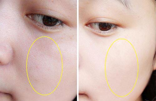 60歲的皮膚科醫生膚質好,皮膚少皺白嫩,保養秘籍很簡單