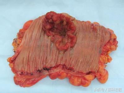 豬哥亮因大腸癌病逝!大腸癌早期症狀不易發現!教你幾招辨別!