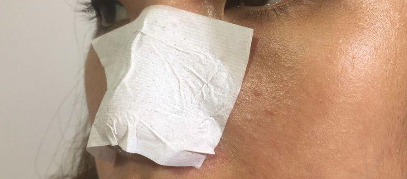 黑頭貼有很多種,有可溶解黑頭的軟膜、有具水溶性膠,可以一次過撕 走黑頭 的黑頭貼。購買時不妨問一問店員,因為每個人的黑頭頑固程度以及皮膚狀態都不同。深層次 黑頭 就可能需要毛孔清潔鼻貼,黏走頑固黑頭,但長遠使用就會讓毛孔變大。黑頭不算嚴重或有敏感肌膚的人建議使用黑頭潔淨軟膜,持續使用一星期會有明顯效果。但有些黑頭貼就有「呃錢」之嫌,真的要試過先知! 小編試過最有效的是泰國「White蘆薈 黑頭鼻膜 」,確實是平、靚、正之選! 效果: