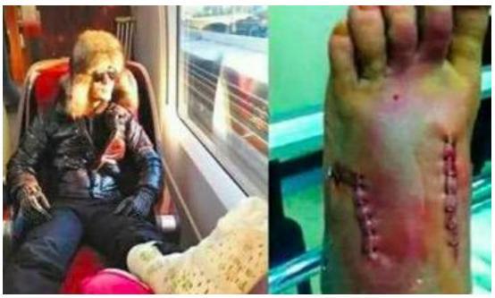 張柏芝傷勢嚴重,林志玲6根肋骨骨折,楊紫瓊的膝蓋嚴重畸形!