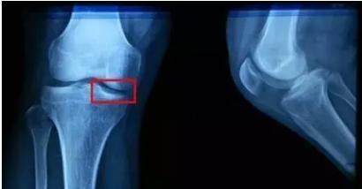 膝骨關節炎患者,你應該知道的6要點!做到這些就是省錢了!