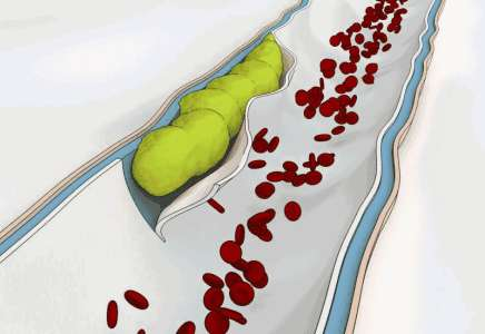 5個症狀說明你的血管已經堵塞了!這5種食物快吃起來!