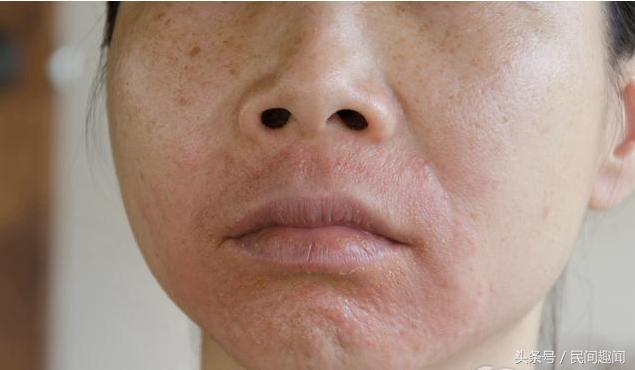 血脂高不高,看臉這一處就知道!5個皮膚症狀暗示「高血脂」,吃這「降脂三寶」,降血脂!