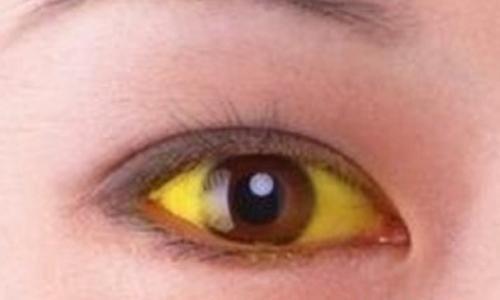 小測試:肝不好,眼睛會發出4個信號,5個方面來預防!