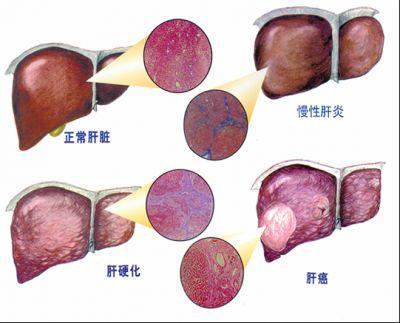 三大信號警示可能你的肝出現肝硬化了!肝臟排毒法讓你的肝不再硬