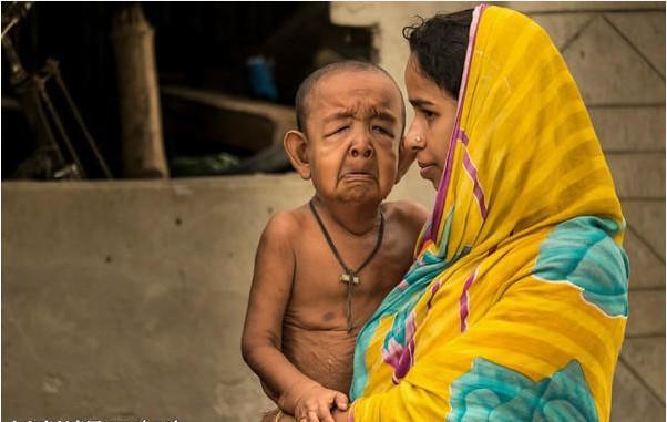 這個小孩才8歲便像個小老頭兒,醫生也不知道他得了什麼怪病