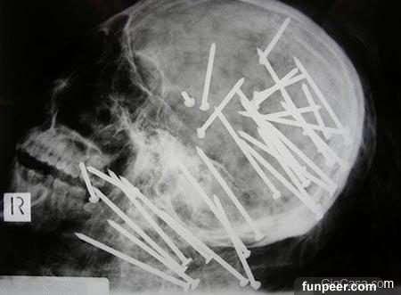 7張X光照,這些不可能在「出現在身體裡」的東西就連醫生都傻眼了!#5啊啊30根這麼多這麼粗怎麼插進去的…