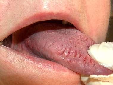 從「舌頭紋路」看出你的健康狀況!出現「這9種狀況」請馬上到醫院掛號!