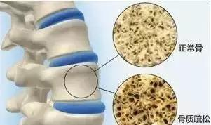 一天一勺,補鈣健骨、防中風、助降壓、軟血管,延緩衰老