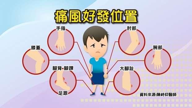 中醫:「痛風」是「痹症」!「四大痛風體質」看「舌頭」就知道!