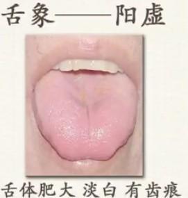 珍貴的舌診圖譜,通過舌頭認識自己的身體狀況