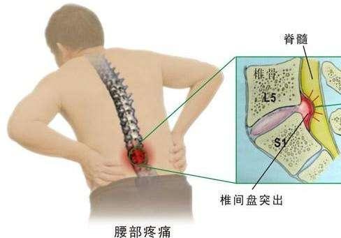 腰痛?用了茴香+豬腰,父親幾十年的腰間盤突出徹底根除不再犯!