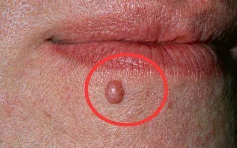 身體這幾個部位出血,很可能是癌細胞擴散了,現在去醫院還來的及