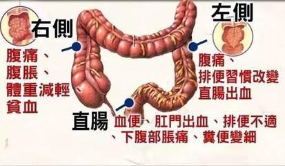 80%的大腸癌發現時已是晚期,哪些症狀「暗示」大腸癌?