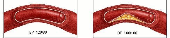 五類人易被血栓「拴住」,一個小動作,「沖洗」血管,遠離血栓!