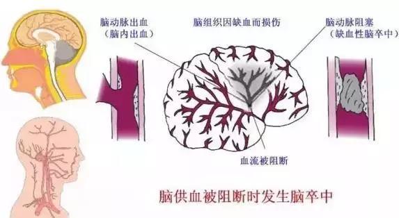 腦中風症狀有那些?遠離腦中風,200微克葉酸有大用