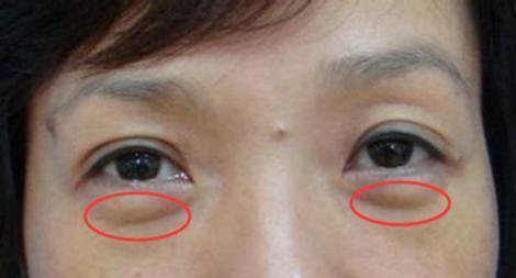女人有眼袋愛打玻尿酸?別傻了!塗點廚房便宜貨,兩周撫平眼袋