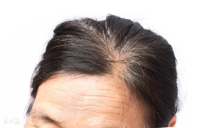 判斷身體的健康狀況,看白頭髮長的位置就知道了,很準!很厲害!