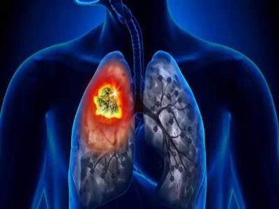 越來越多女性肺癌患者,跟每晚干這個活有關,4句話幫你遠離肺癌