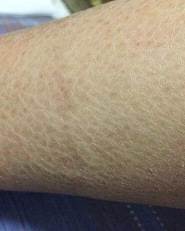 「魚鱗癬」的圖片搜尋結果