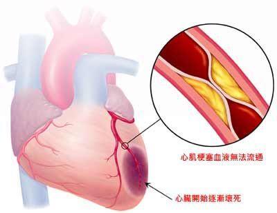 血管堵沒堵,一摸就知道,6個方法讓血管暢通無阻