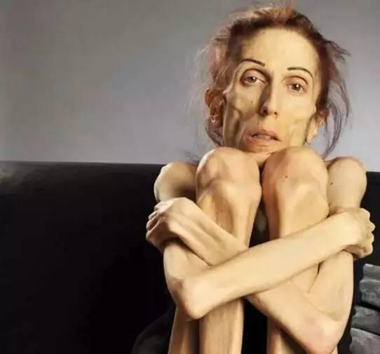 37歲的她瘦得只剩18公斤,連醫生都對她的病束手無措,沒想到丈夫竟然用「這種東西」來為她治療….如今的她已經…