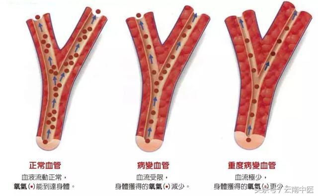 這根血管連通大腦,最易堵!吃它就能疏通