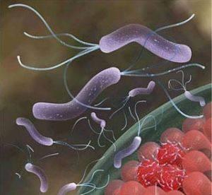 幽門螺桿菌最怕的4種食物,每天堅持吃,腸胃不難受