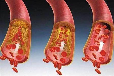血管堵塞難清理?每天抓一把,通血管還能降血壓!