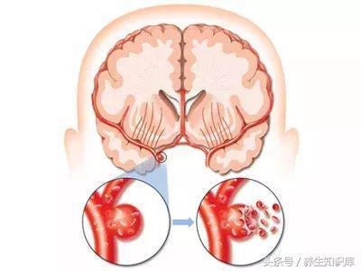 警惕:腦血管要「崩潰」的10大信號,早發現,或許能救命!