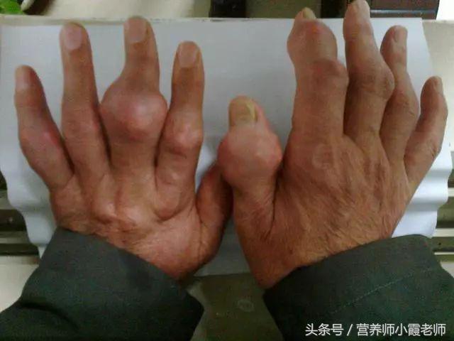痛風患者:4個信號出現,說明病情加重,每個都要重視!
