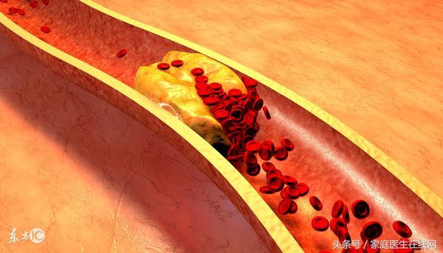 什麼會影響癌細胞的生長速度?醫生大聲地說出了這4件事