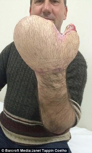這個工人的手掌整隻斷掉後「醫生直接把手縫進肚子裡」,現在拿出來一看大家都不敢相信會變那樣!