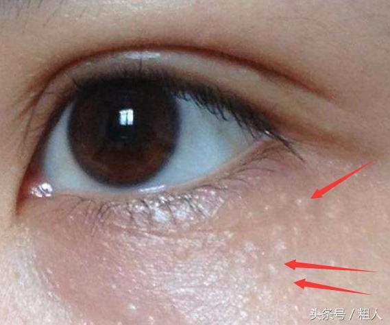 眼角總是長「脂肪粒」?別急著用手擠,教你「4招」簡單方法,眼周更光滑細膩!