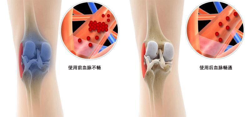 一把「韭菜」勝過10副葯,有「膝蓋疼痛」的人再也不用四處求葯了!快收藏